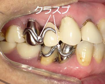 入れ歯 奥歯 部分 No.16「初めての部分入れ歯ですが違和感がありませんでした」(40代 女性
