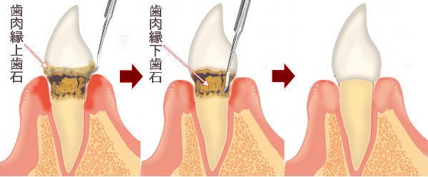 歯石 取り で 自分 【専門医が解説】歯石除去に使う器具は通販で買える!自分で歯石取りする方法と注意点