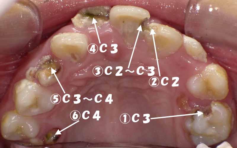 の 歯 時 が 食事 痛い 物が噛めないときの食事