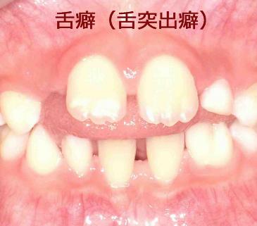 歯並び 滑 舌