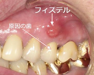 が 歯 痛い 前 生理