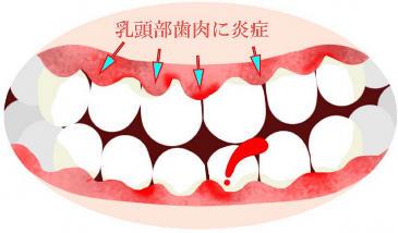 治し 歯肉 方 炎