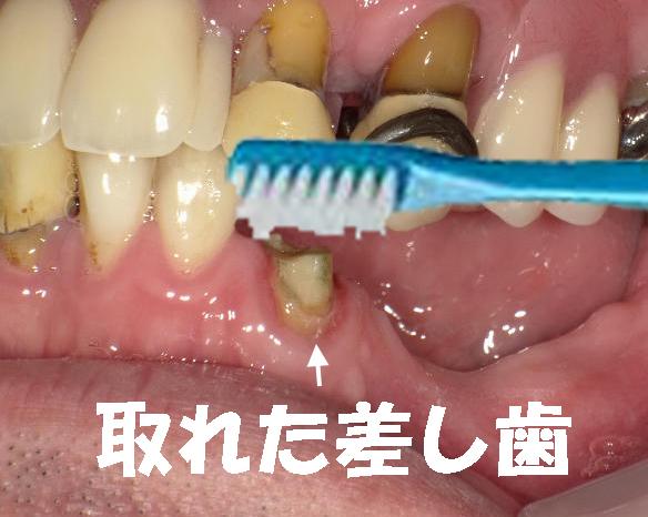 差し歯 値段 奥歯