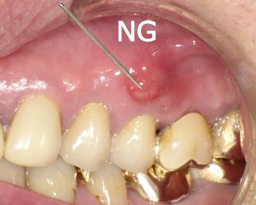 フロモックス 市販 抗生物質 歯茎の腫れ