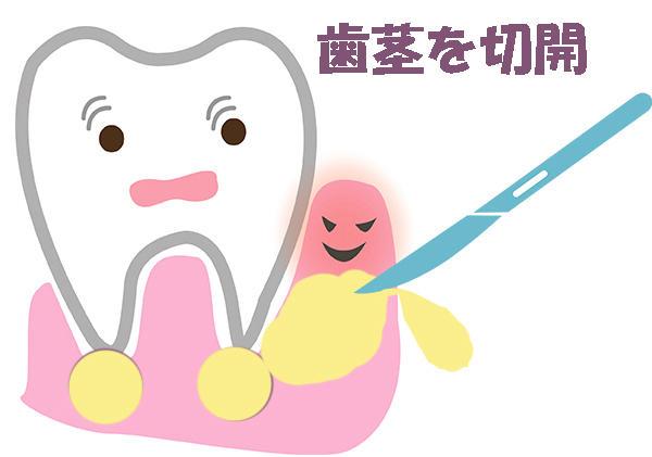 セフカペンピボキシル 歯茎の腫れ