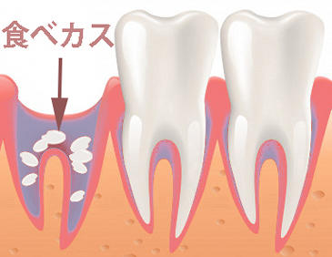 親知らず 抜歯 後 出血 いつまで 親知らず抜歯後の臭いはいつまで?